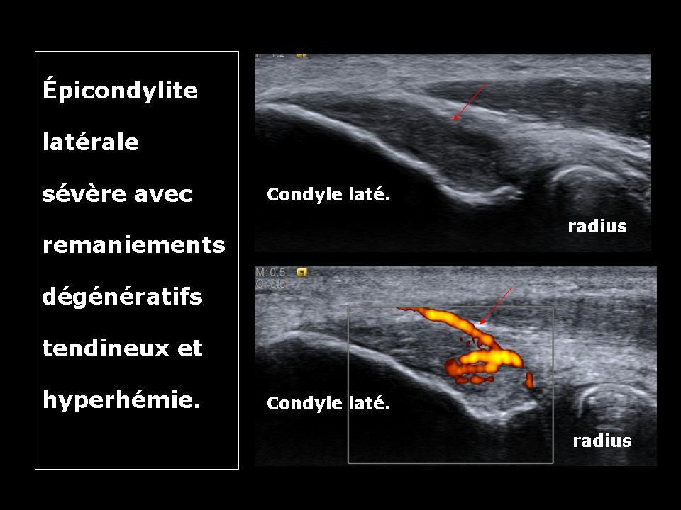 épicondylite-latérale