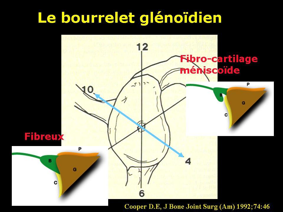 bourrelet1