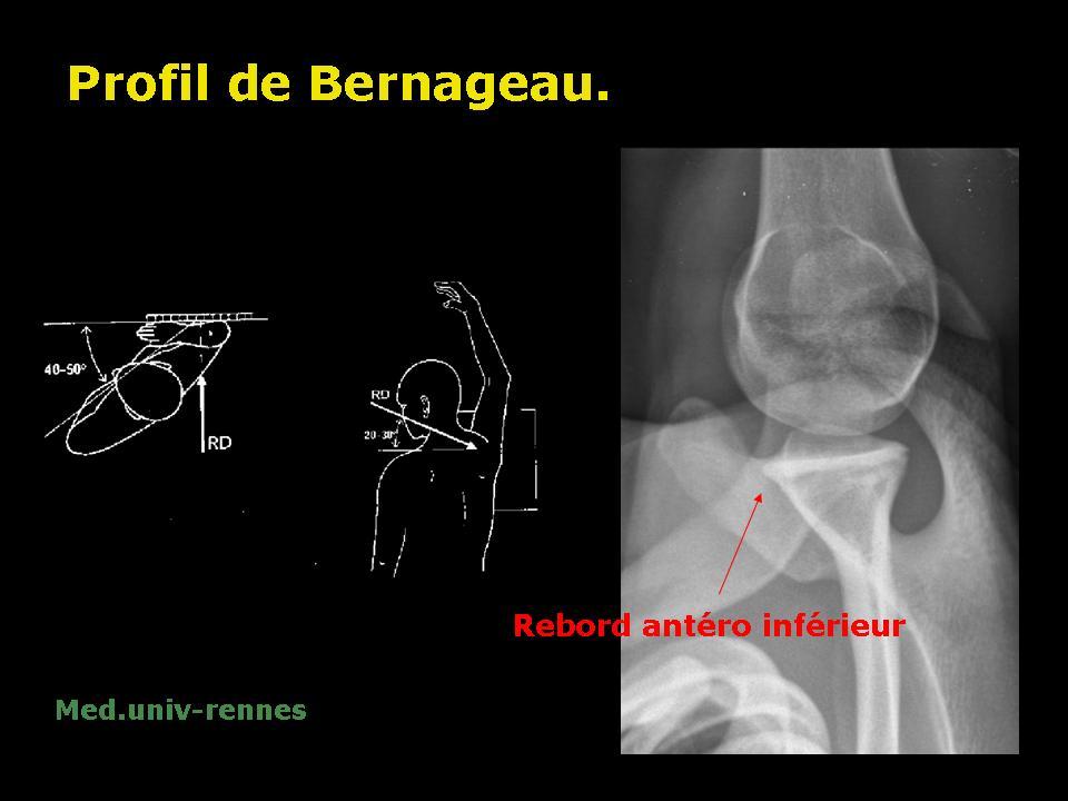 bourrelet10
