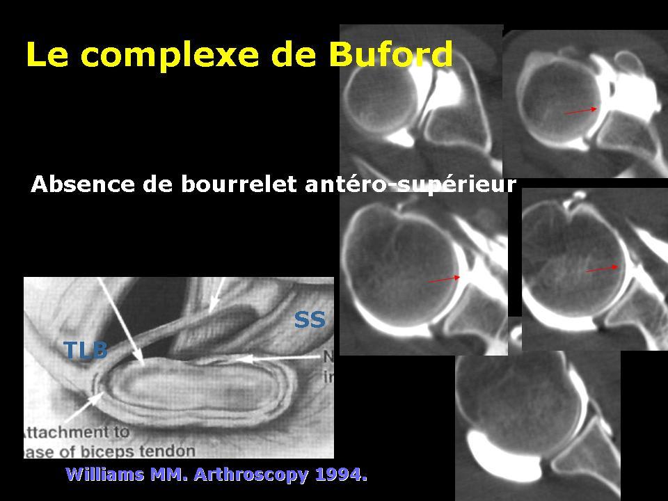 bourrelet6