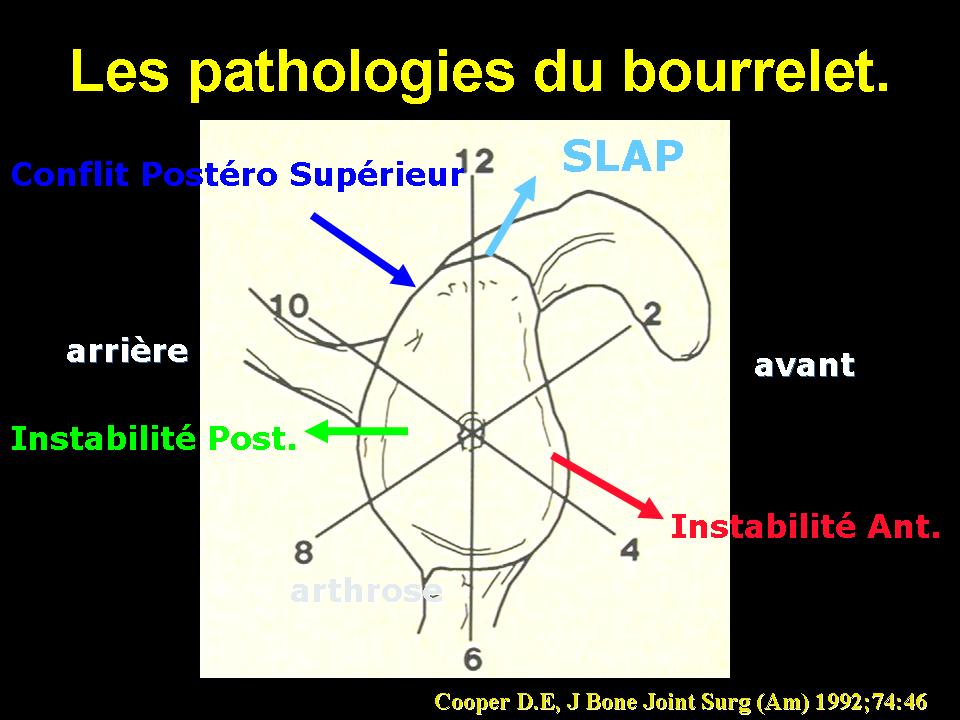 bourrelet9