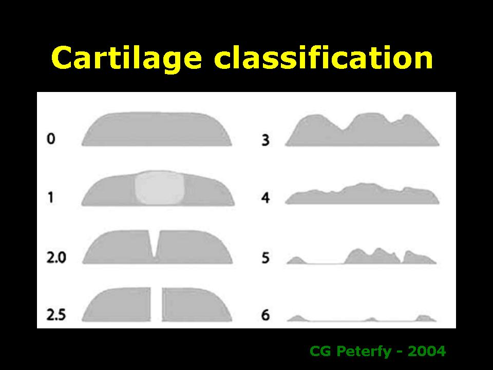 cartilage-classifi